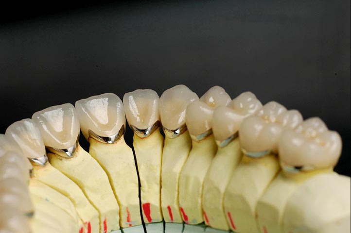 Dental Crowns and Tooth Bridges